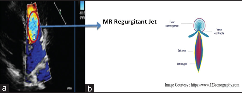 Figure 2: (a) Color flow Doppler image showing the regurgitation jet. (b) Diagrammatic representation of the regurgitant jet